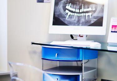implantologia stomatologiczna